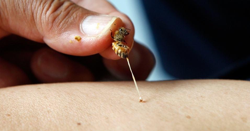 Como curar uma picada de abelha 1